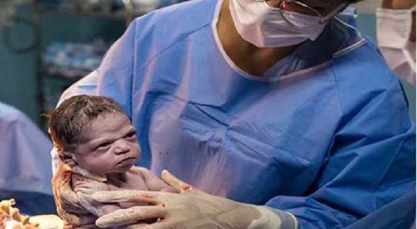জন্মের পরেই 'রেগে আগুন' নবজাতক ! ছবিই ভাইরাল